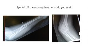Monkey bar fall