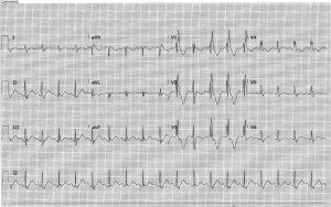 cardiac-contusion