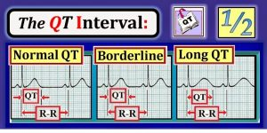 QT half RR ecg-interpretation.blogspot.com